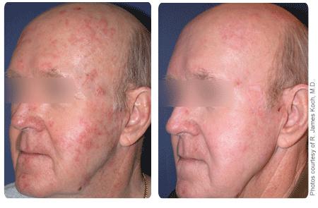 Contour Laser Skin Peel, inamicul cicatricilor şi al ridurilor