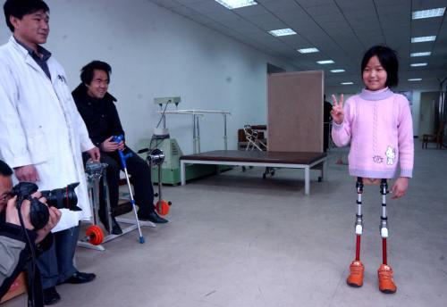 Qian Hongyan, fetiţa cu o minge de baschet în loc de picioare