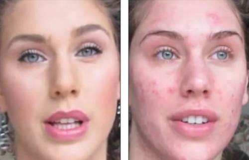 TUTORIAL VIDEO: Uite cum să te machiezi ca să acoperi perfect acneea şi problemele tenului! Spectaculos!