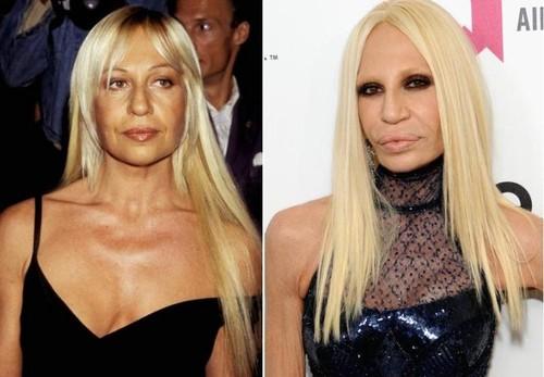 Celebrități cu fețele distruse de operații estetice