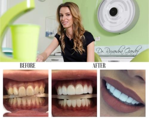 fatete dentare - inainte si dupa