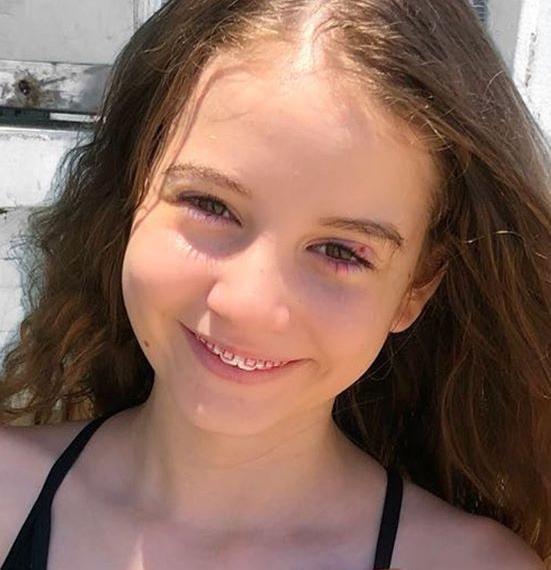 Ce este șalazionul, boala de care suferă Irina Columbeanu